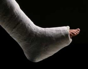 zraneni-zlomena-noha-rugbyrescue.com